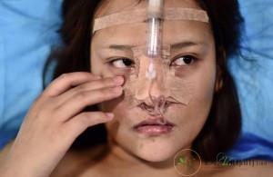 جراحی زیبایی زنان در قم