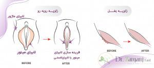 درمان عفونت بعد از عمل لابیا پلاستی