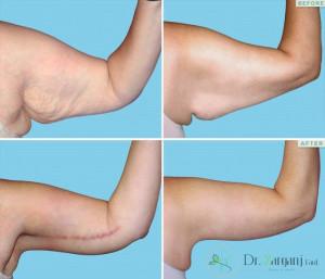 لیفت بازو بدون جراحی چگونه انجام می شود ؟