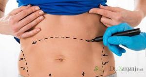 انجام جراحی زیبایی در زنان می تواند دارای چه مزایایی باشد ؟