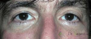 آیا کربوکسی تراپی برای ترک بدن عوارض دارد؟