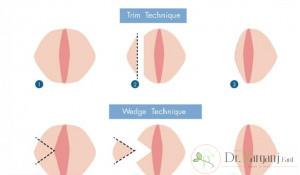 در کل مراقبت های برای عمل لابیاپلاستی وجود دارد که در زیر به آنها اشاره کرده ایم :