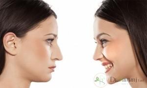 در تبریز چه نوع جراحی های زیبایی برای زنان انجام می شود ؟