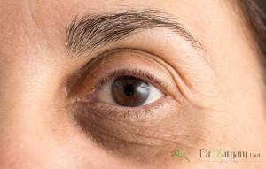 کربوکسی تراپی دور چشم به چه دلیل انجام می شود: