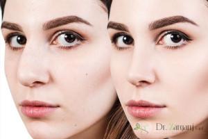در چه نقاطی از صورت و بدن برای رفع نقایص می توان از جراحی زیبایی کمک گرفت ؟