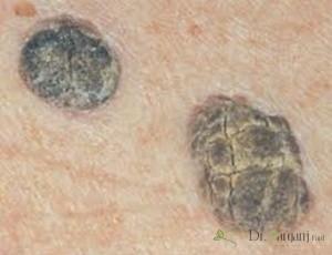بیماری کراتوز سبورئیک :