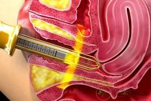 با تنگ کردن واژن به وسیله لیزر می توان چه مواردی را درمان کرد؟