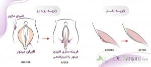 هزینه جراحی عمل لابیا پلاستی