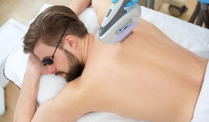 لیزر فول بادی در خانم ها چه قسمتهایی از بدن را شامل می شود؟