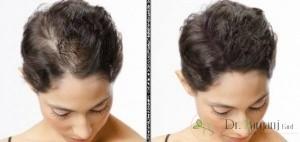 هیچ روشی برای درمان ریزش مو کشف نشده است