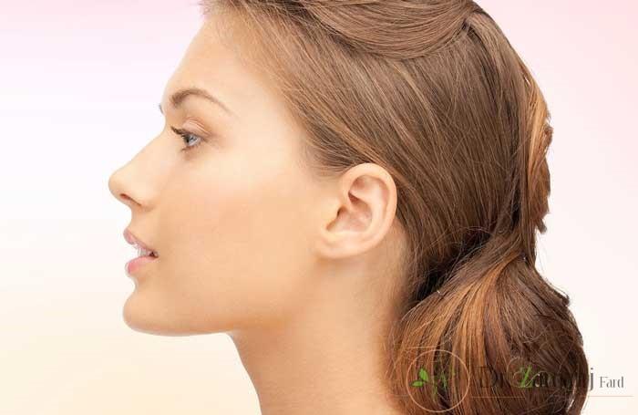 از بین روش های لیفت بینی با تزریق ژل یا لیفت بینی با نخ مخصوص کدام بهتر است ؟