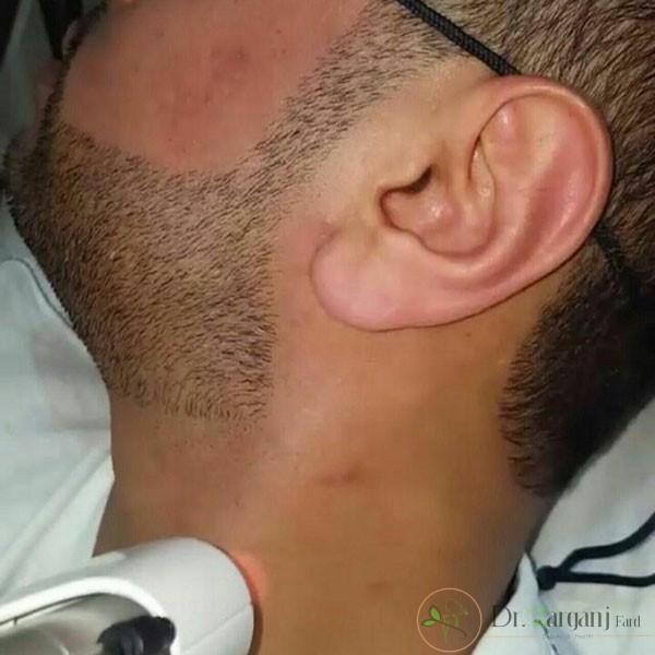 پر کاربرد ترین نواحی لیزر موهای زائد در آقایان کدامند؟