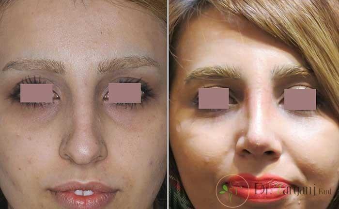 اصلاح بینی به روش لیفتینگ یا غیر جراحی