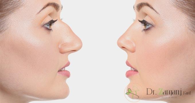 چرا از روش غیر جراحی برای اصلاح بینی استفاده می شود ؟