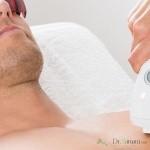 قیمت لیزر موهای بدن آقایان
