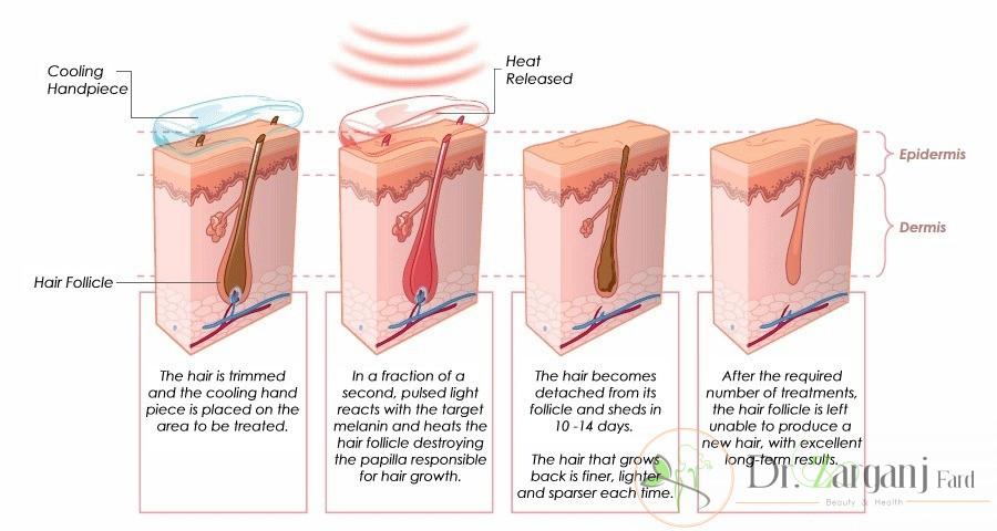 آیا لیزر موهای زائد ناحیه تناسلی سرطان زا است؟