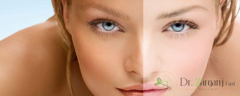 روش لیزر برای برطرف کردن تیرگی پوست یا لکه، دارای چه مزایایی است؟