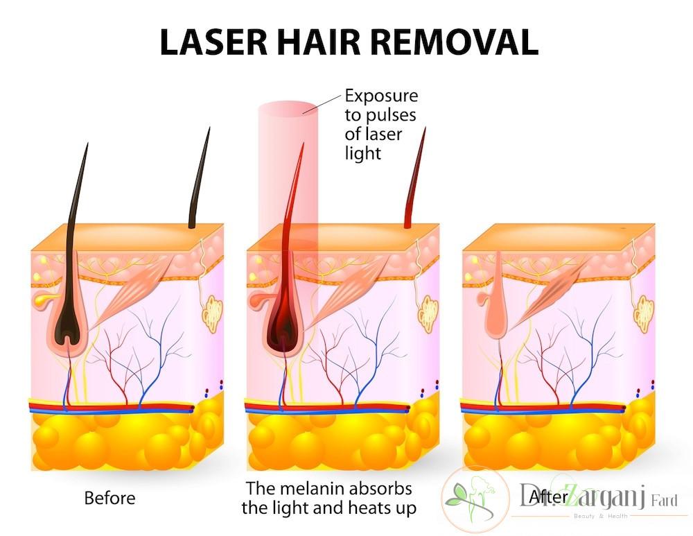 لیزر موهای زائد ناحیه تناسلی چقدر هزینه دارد؟