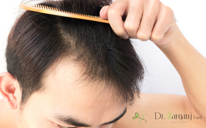 ریزش مو در سه حالت ممکن است رخ دهد :