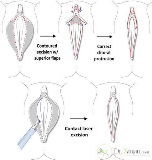 چگونه بهترین جراح را برای عمل لابیاپلاستی انتخاب نماییم؟