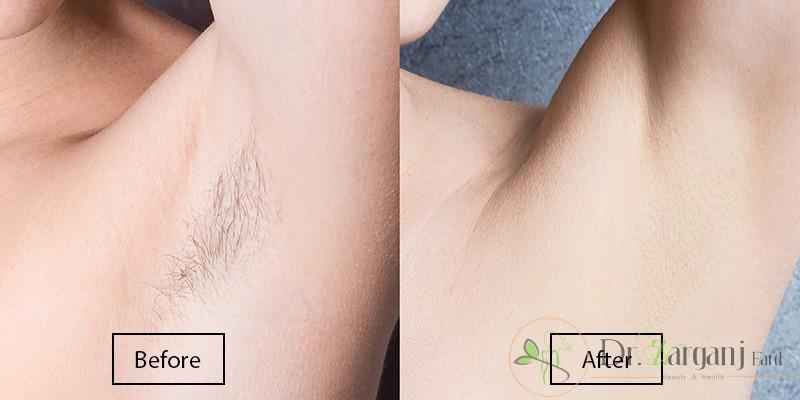 تیغ زدن های زیاد مخصوصا در ناحیه زیر بغل موهای زیر پوستی زیادی ایجاد کرده، آیا لیزر مو کندلا این مشکل را حل می کند؟
