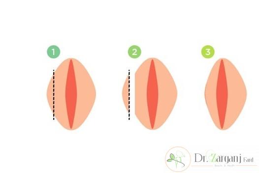 آیا می دانید لابیاپلاستی چه نوع جراحی است؟