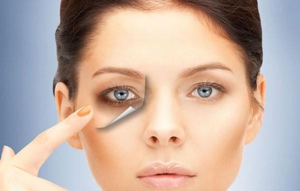 درمان تیرگی زیر چشم با استفاده از لیزر