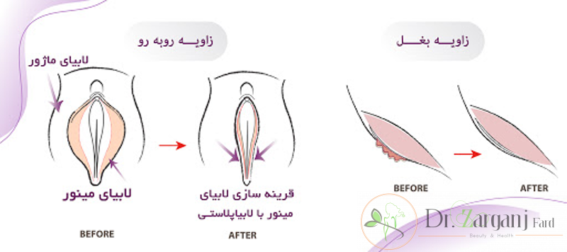 عمل های جراحی زیبایی زنان چه مزیت هایی دارد؟