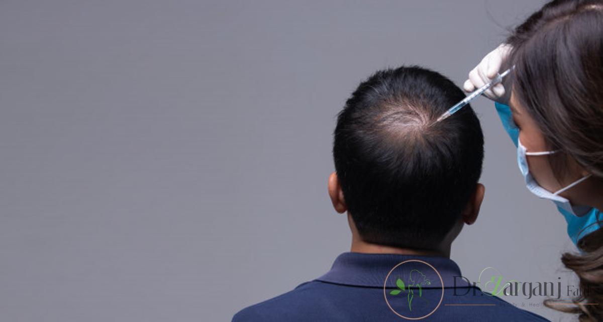مزونیدلینگ مو چیست و چگونه عمل می کند ؟