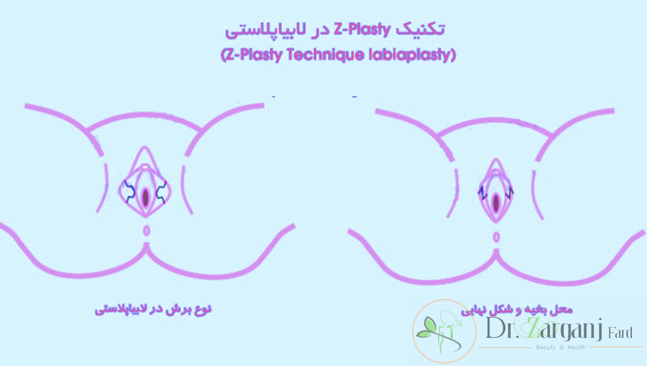 روش پنجم تکنیک Z-Plasty Technique