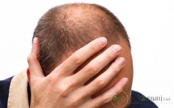 مزونیدلینگ در درمان ریزش مو