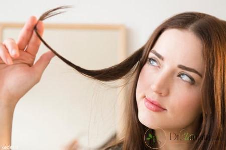انواع ریزش موی سر