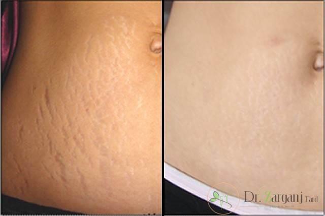 کربوکسی تراپی و اثرات آن در درمان ترک های پوستی شکم