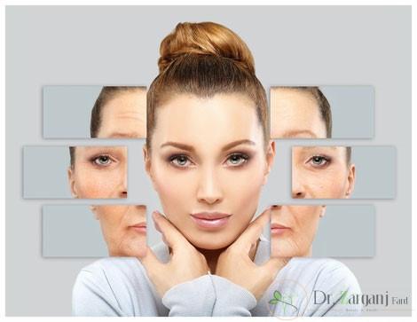 درمان مزونیدلینگ و ساختار پوست