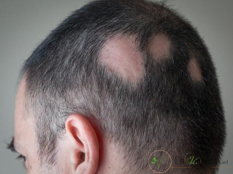 ریزش موی سکه ای: