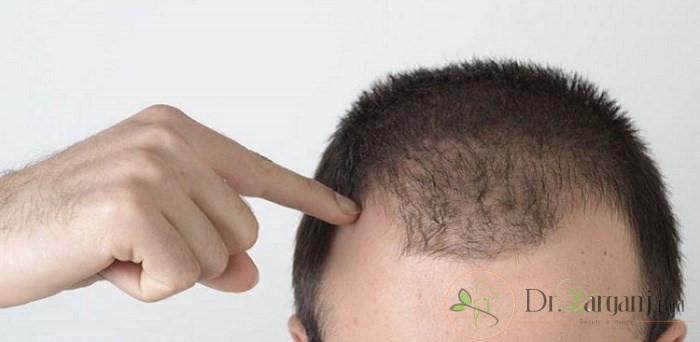 فواید و مزایای مزونیدلینگ مو و پوست