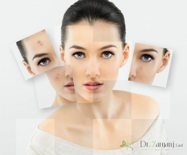 مزونیدلینگ پوست صورت