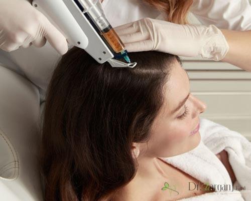 آشنایی با روش درمان مزونیدلینگ مو