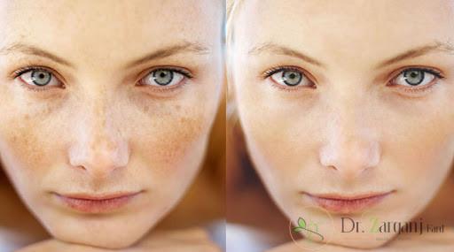 کربوکسی تراپی و درمان لک صورت