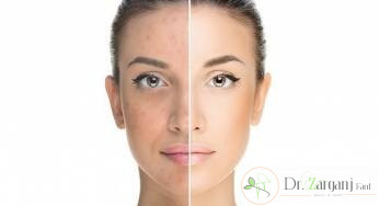 برای درمان لکه های پوستی باید موارد زیر را در نظر داشت:
