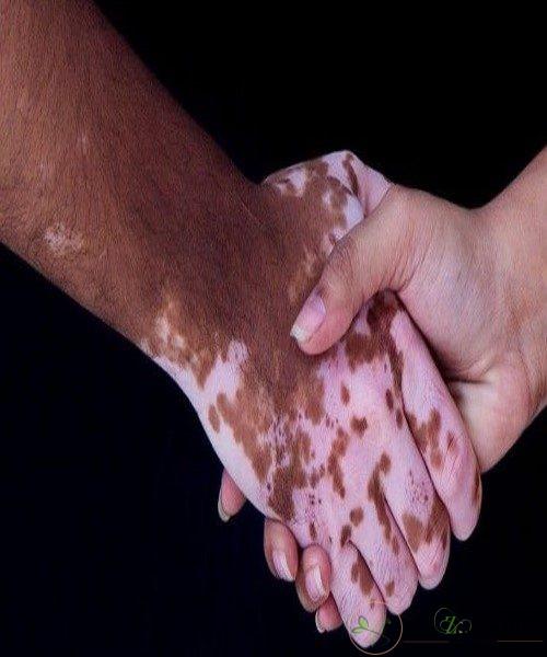 متخصص بیماری های پوستی بیماری پوستی پیسی را چگونه درمان می کند؟