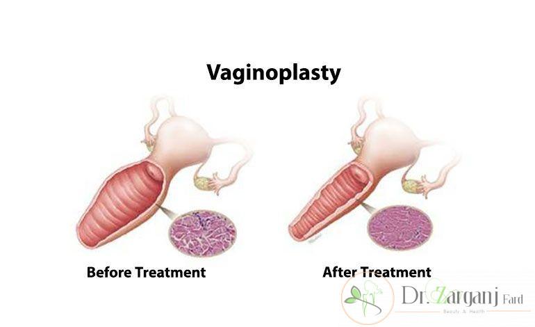 مشکلات گشاد شدن واژن