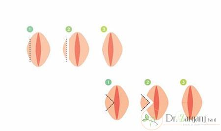 - ترمیم لابیاپلاستی به چه معنا می باشد ؟
