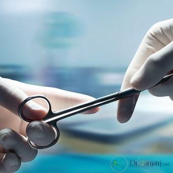منظور از انجام دادن عمل لابیاپلاستی چیست؟