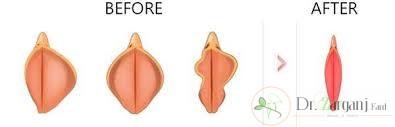قبل از انجام جراحی زیبایی واژن برای اصلاح شکل لابیاها به نکات ذیل توجه داشته باشید: