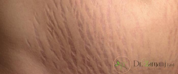 روش انجام کربوکسی تراپی ترک های پوست چه فرآیندی دارد؟