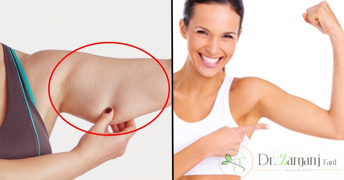 بعد از انجام کربوکسی تراپی بازو چه نکاتی را باید رعایت کنید؟