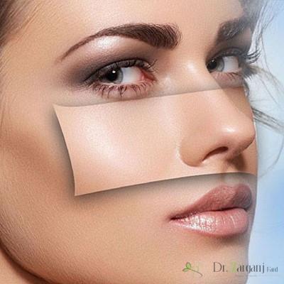 از بین بردن رنگدانه های پوست با لیزر