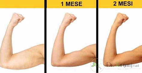 قبل از انجام کربوکسی تراپی بازو به چه نکاتی باید توجه داشت؟