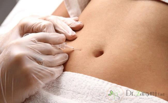 روش انجام کربوکسی تراپی ترک های پوستی تا بهبودی کامل پوست به چند جلسه نیاز دارد؟